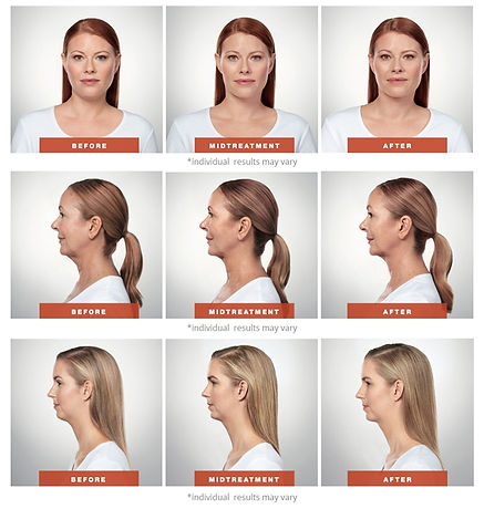 Kybella Before & After Photos