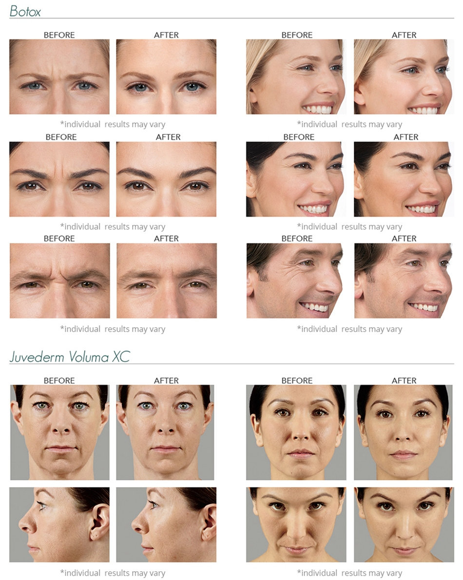 Botox & Juvederm Before and After Pictures