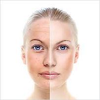BDR, Beauty Defect Repair