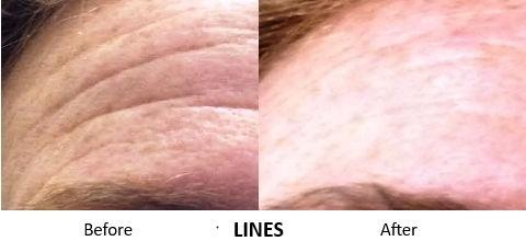 PicoSure - Lines.jpg