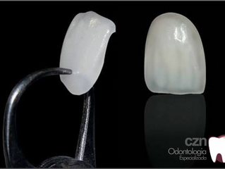 'Lente de contato' para dente corrige imperfeições e evita desgaste.