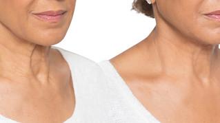 Botox Neck Lift
