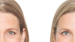 Botox Treatment for Undereye Bag