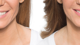 Botox Jaw Treatment