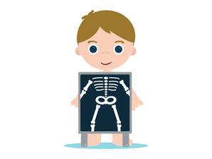 Cuidados ortopédicos começam na infância