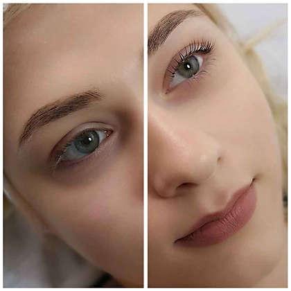 Before & After Laminare gene.jpg