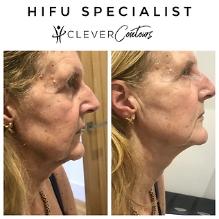 Clever Contours | HIFU Facelift | Before and After | HIFU Results