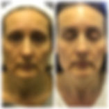 HIFU Face Lift | Clever Contours