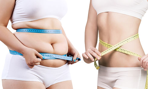 Clever Contours | Fat Freezing | Cool Sculpting | Marple | Witney