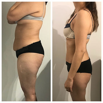 Fat Freezing | Before and After | Clever Contours