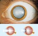 La cataracte Atol opticien Istres