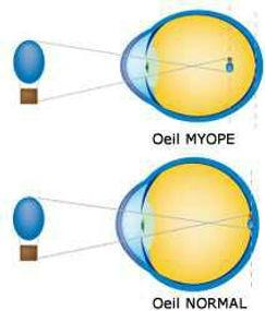 myopie - Atol opticien Istres.jpg