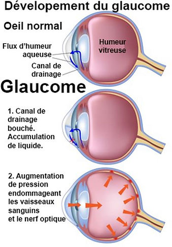 schéma glaucome - Atol opticien Istres