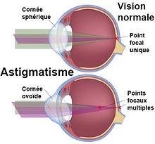 schéma oeil astigmate atol opticien istres