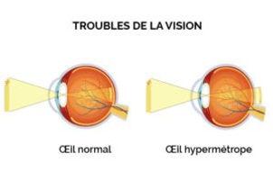 schéma oeil hypermétrope atol opticien istres