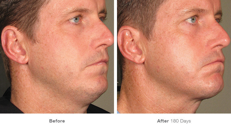 before_after_ultherapy_results_full-face