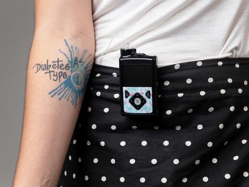 Bomba de Insulina: Tudo o que você precisa saber!