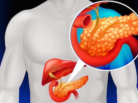 Transplante de pâncreas: como funciona e pra quem é indicado?