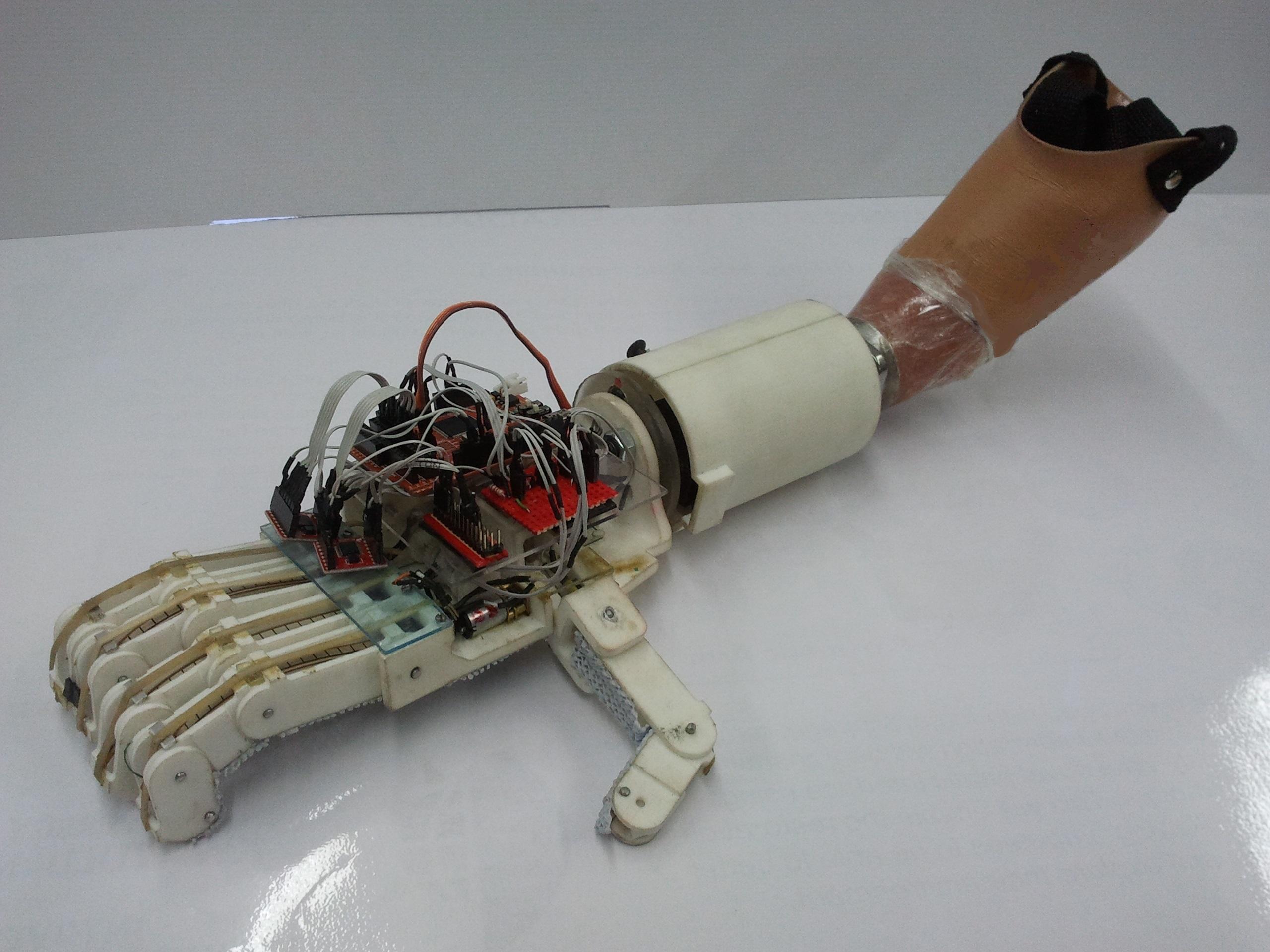UKZN Prosthetic Hand