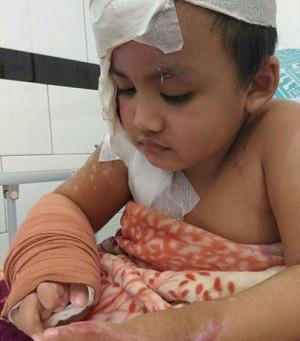 Indonésia - Criança Queimada em Ataque a Igreja, sente Vergonha das Cicatrizes
