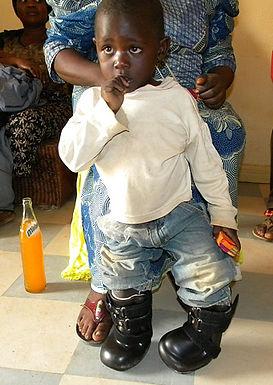 Criança que Teve os Pés Queimados, Volta a Andar com Sapatos Especiais