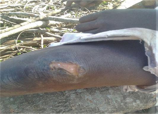 Muçulmanos atacaram família cristã que estava a receber tratamento médico de um ataque anterior