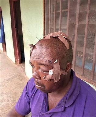 Extremistas Fulani atacam casal cristão na Nigéria