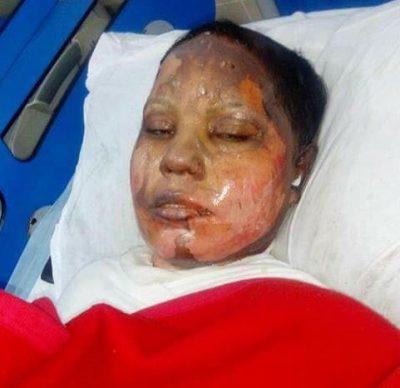 Asma Masih, 25 anos, morreu no hospital