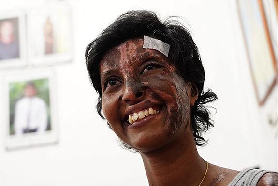 Sobrevivente de um atentado à Igreja no Sri Lanka segue louvando Cristo