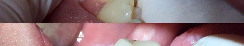 Прямая реставрация зуба.