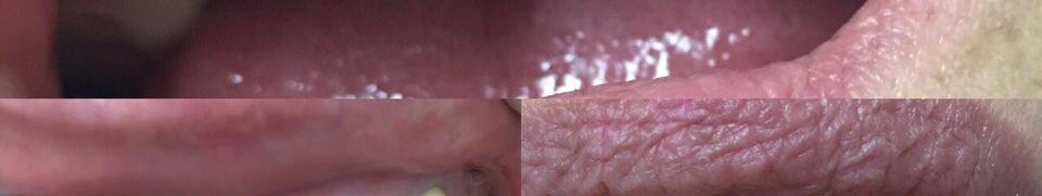 Реабилитация корней зубов и коронок
