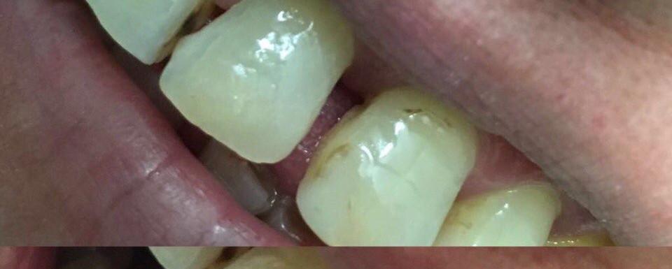Реставраиция зуба
