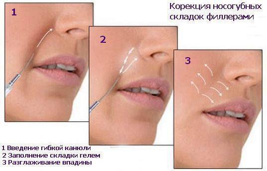 корекция носогубных складок