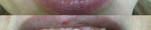 Реставрация перелнего зуба