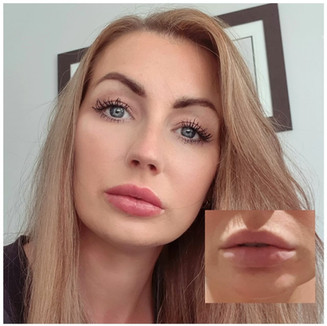 Before and after lip blush