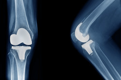 knee arthroplasty front view and side v