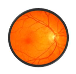 Retina xəstəlikləri