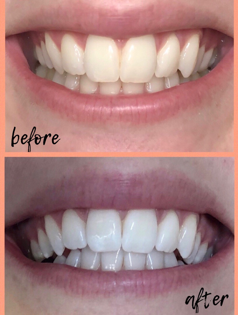 Smile Brilliant before and after, teeth whitening