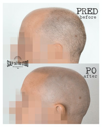 scalpmicropigmentation Scalp Tattoo Studio