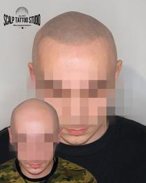 P123pred a po mikropigmentacii - scalp tattoo