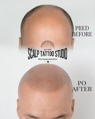 SMP scalp micropigmentation