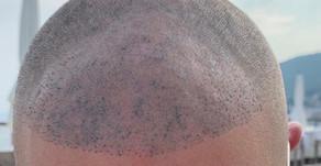 Oprava mikropigmentácie