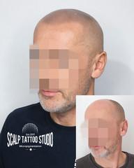 SMP - mikropigmentacia - tetovanie vlasovych korienkov