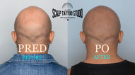 SMP - scalp micropigmentation - mikropigmentacia
