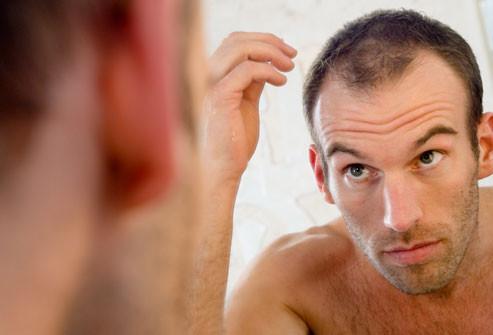 scalp micropigmentation scalp tattoo studio