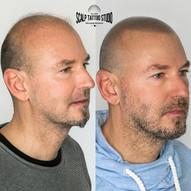 mikropigmentacia - tetovanie vlasovych korienkov