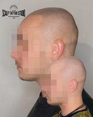 pred a po mikropigmentacii - scalp tattoo