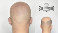 mikropigmentacia SCALP TATTOO STUDIO