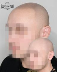 Pred a Po mikropigmentácii
