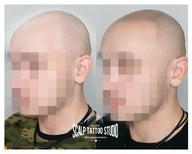 Pred a Po tetovaní - mikropigmentácii
